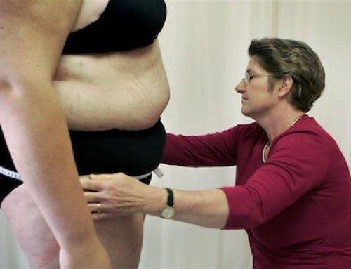 100 duizend volwassenen hebben morbide obesitas